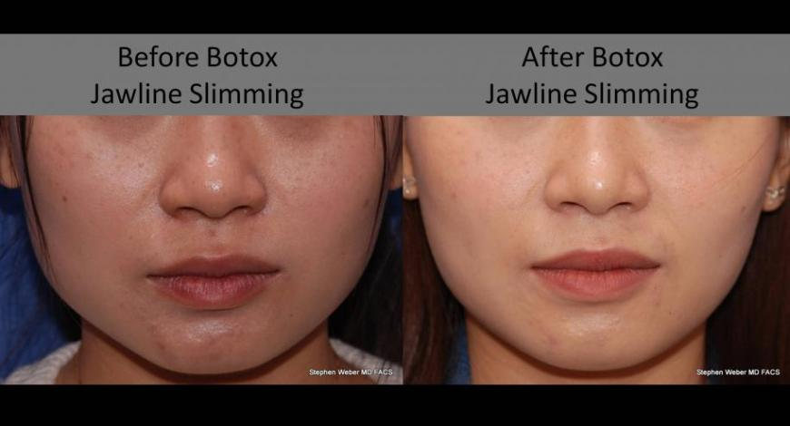 Non-Surgical Jawline Shaping with Botox